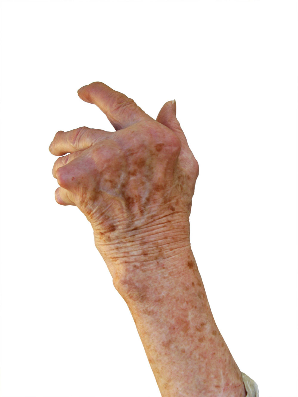 Raised arthritic hand - Thinkstock photos