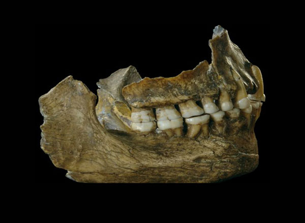 Neandertal teeth