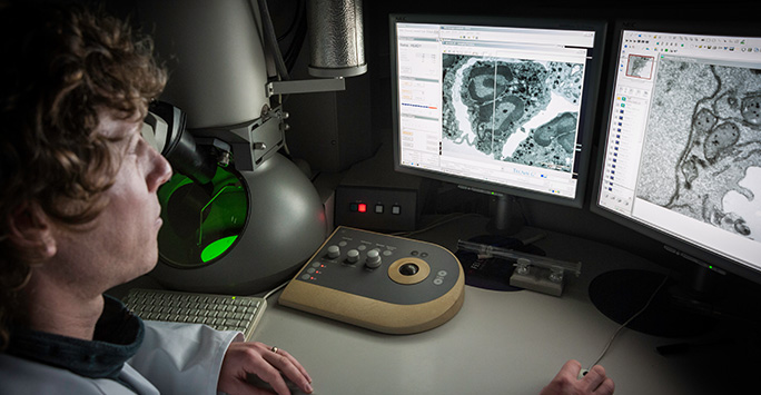 What is Electron Microscopy?