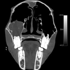 A equine computed tomography scan