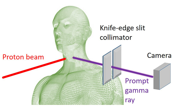 Knife-edge Prompt Gamma camera setup for head and neck cancer patient