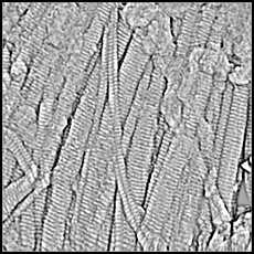 Collagen imaged with an AFM